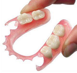 ノンスクラプ義歯